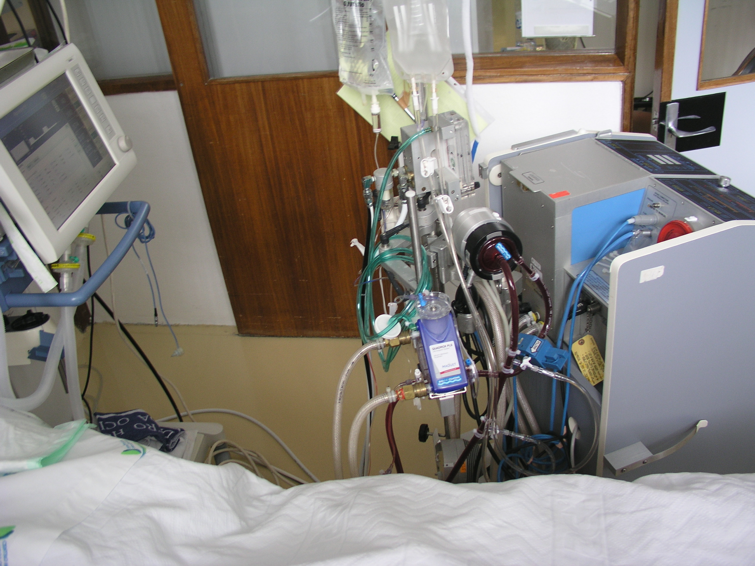 Extracorporeal Shock Wave Therapy Device
