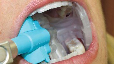 dental cements market