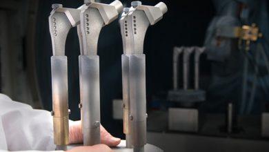 Plasma Sprayed Coatings for Medical Use Market